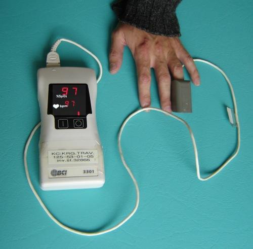 thumb pulzni oksimeter 1