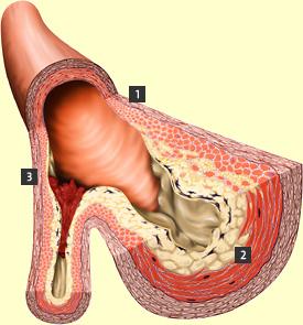 holesterol